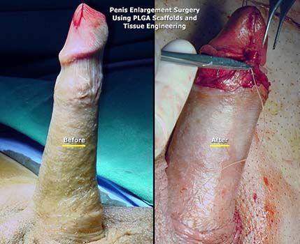 penis-enlargement-surgery-md