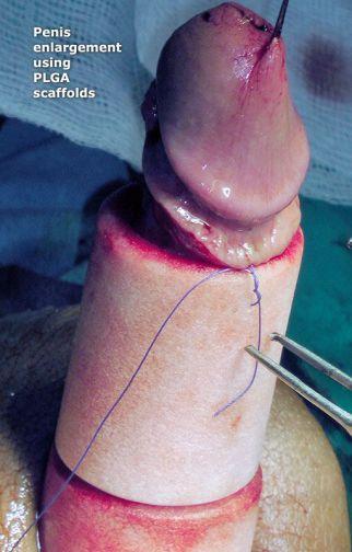 plga-penis-enlargement-lg